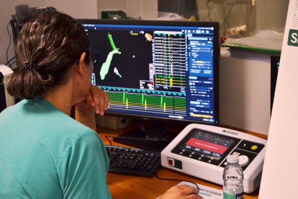 Serviço de Saúde reforça capacidade de tratamento dos doentes cardíacos